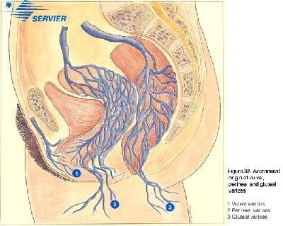 Vulvar Varices